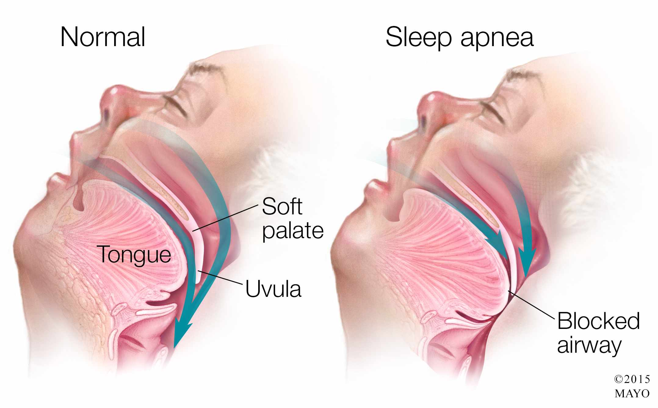 Name:  Medical-illustration-of-sleep-apnea.jpg Views: 331 Size:  132.8 KB